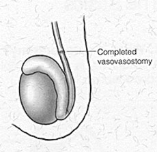 Completed Vasectomy